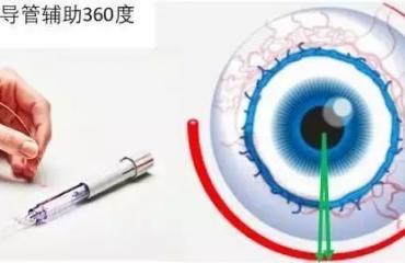 山东省微创治疗先天性青光眼新技术3.0上线,了解一下——微导管辅助的内路360°小梁切开术治疗先天性青光眼取得可喜的效果