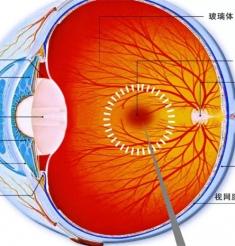 黄斑水肿等眼底病治疗的新宠