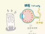 齐鲁壹点报道:青光眼终身威胁视力,眼科专家:和医生交朋友很重要